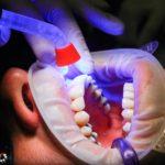 Złe postępowanie odżywiania się to większe braki w jamie ustnej natomiast również ich brak